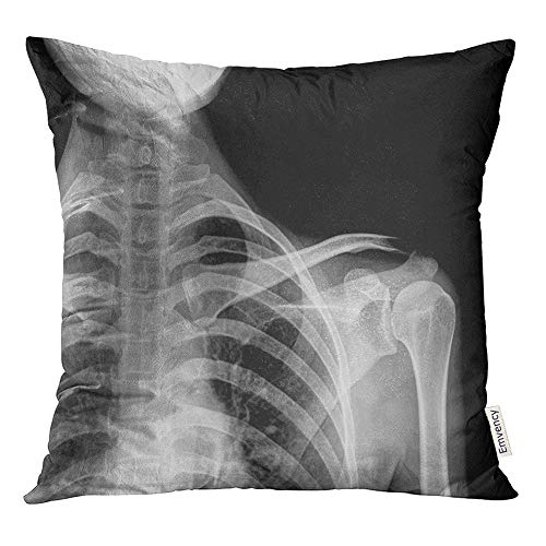 Emvency Throw Pillow Covers Decorative Cases Adult X Rays of The Painful Injury Shoulder Joint Dislocation Anatomy Arm Body 20x20 Inch Cover Cushion Pillowcase Square Case Print