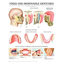 Fixed and removable dentures e chart: Full illustrated