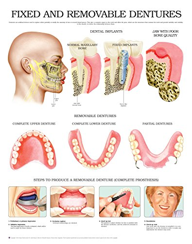 (Fixed and removable dentures e chart: Full illustrated)