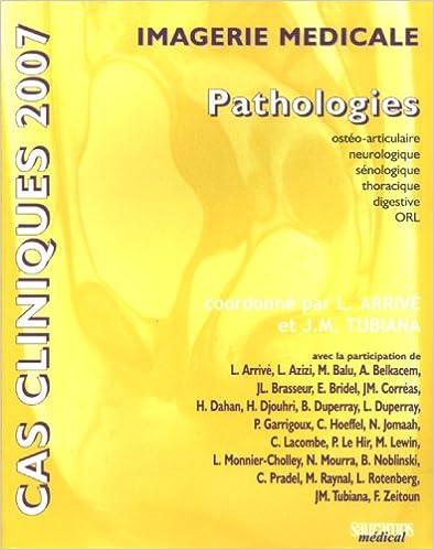 Livres Imagerie médicale : Pathologies epub pdf