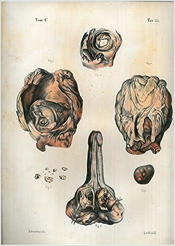 calcoli nella prostata e nella vescica without