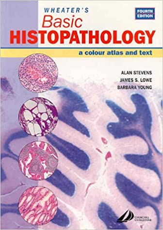 Buy wheaters basic histopathology a color atlas and text buy wheaters basic histopathology a color atlas and text wheaters histology and pathology book online at low prices in india wheaters basic fandeluxe Gallery
