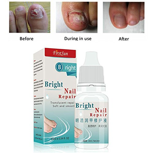 ZeHui Nail Fungus Treatment Cream Onychomycosis Paronychia Anti Fungal Nail Infection Toe Nail Treatment 10ml