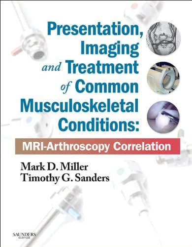 Presentation, Imaging and Treatment of Common Musculoskeletal Conditions E-Book: MRI-Arthroscopy Correlation (Expert Consult - Online and Print)