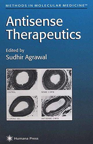 Antisense Therapeutics (Methods in Molecular Medicine)
