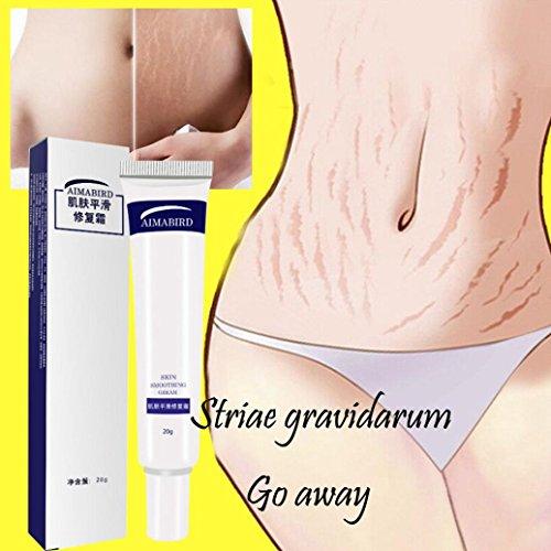 Striae Gravidarum Repair Cream,Enjocho 20g Removal Acne Scar Stretch Marks Cream Fat Scar Striae Gravidarum Treatment 2018 Hot Selling ()