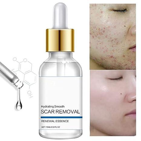Tratamiento para la eliminación de cicatrices de acné para la cara, quitar y aclarar cicatrices, puntos y marcas, natural, marcas de cicatrices ...