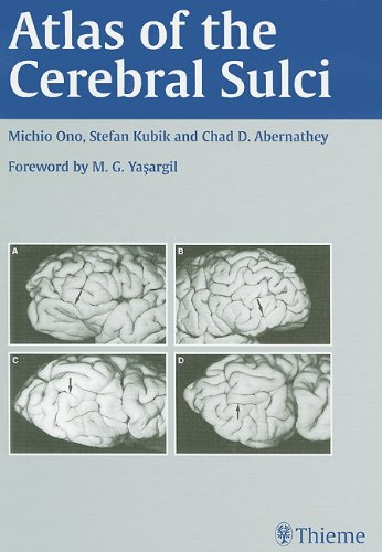 Atlas of the Cerebral Sulci