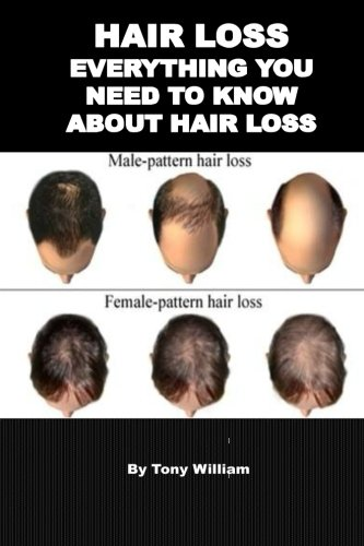 Hair Loss: Everything You Need To Know About Hair Loss (Hair loss, hair loss products, hair loss shampoo, hair loss for men and women)