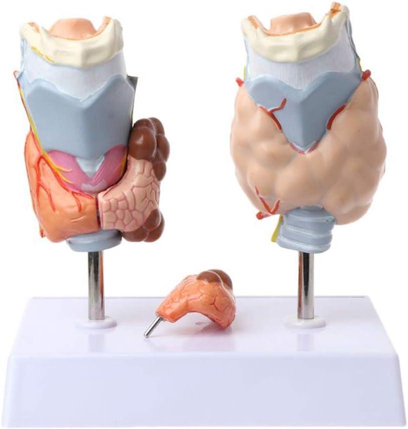 FYN Modelo anatómico de tiroides Humana Patología - Modelo anatómico de la Garganta tiroides tiroides Quiste Modelo de Tumor de Herramienta de enseñanza Ciencias Médicas Anatomía Humana Modelo