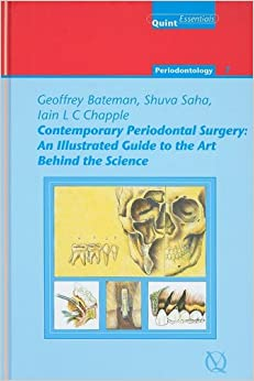 Free Epub Contemporary Periodontal Surgery: An Illustrated Guide to the Art Behind the Science (Quintessentials of Dental Practice 21/ Periodontology)