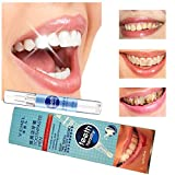 Teeth Whitening Pen Powerfully Remove Yellow Teeth Fast Dental Cleaning Pen