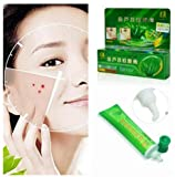 ROLANJONA Gold Aloe Acne Removal Acne-dispelling Cream Anti-acne Ointment Anti Dark Sore Plaster