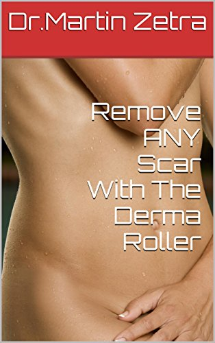 Remove ANY Scar With The Derma