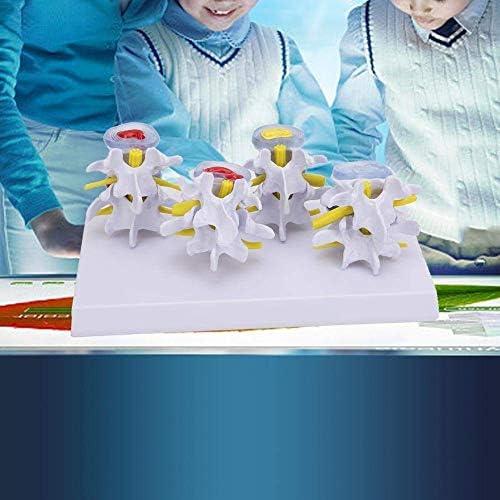 Education Models Lumbar Vertebrae, Lumbar Vertebrae Human Medicals 4 Stages of Normal and Combination Models
