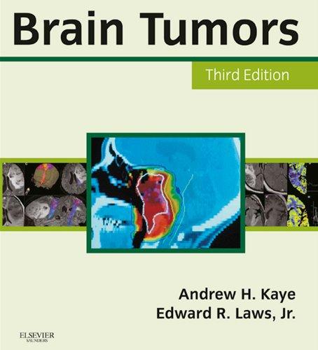 Brain Tumors: An Encyclopedic Approach Pdf