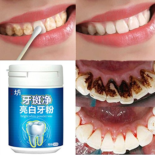 Elevin(TM) Toothpaste Whitening Teeth Care Remove Halitosis Plaque Dentifrice Cleaning - Tooth Enamel Paint