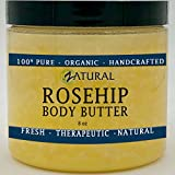 Organic Seed ROSEHIP BUTTER w/ Virgin Shea (8 oz)- Pure Vitamin C for the Face, Hair & Body | Soothe, Heal | Safe for all ages (buy 3 get 1 FREE) Review