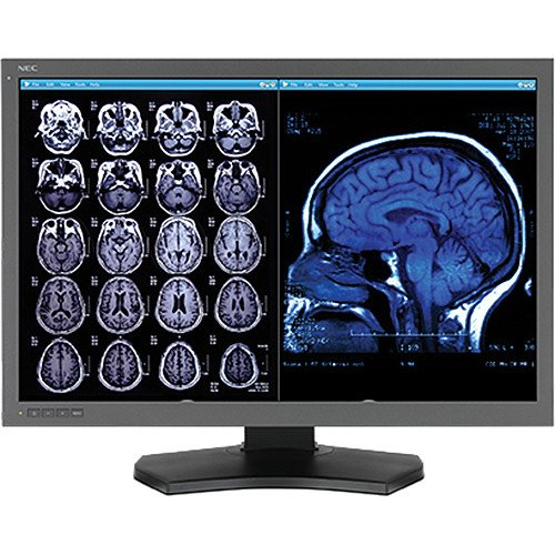 Nec Display Multisync Md302c6-n1 30 Led Lcd Monitor - 15 Ms - 3280 X 2048-1.07 Billion Colors -