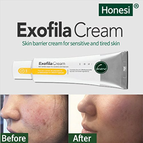 Honesi Exofila Cream, Improves Acne Scars