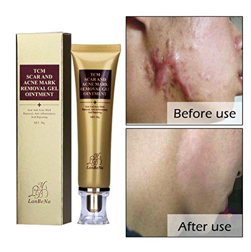 Best Face Cream For Acne Marks - 9