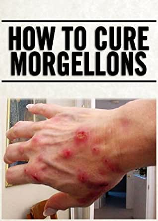 How To Cure Morgellons
