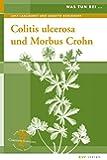 Colitis ulcerosa und Morbus Crohn: Naturheilkunde und Integrative Medizin (Was tun bei)