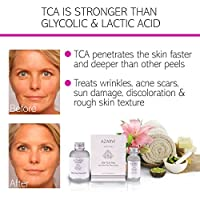20% TCA Peel Including After Peel Neutralizer. Strong Peel for Wrinkles, Acne, Smoker's Skin. Contains Retinol & Vitamin C
