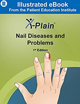 X Plain R Nail Diseases And Problems By Haddad SF