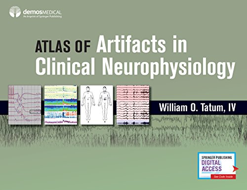 Artifacts in Clinical Neurophysiology
