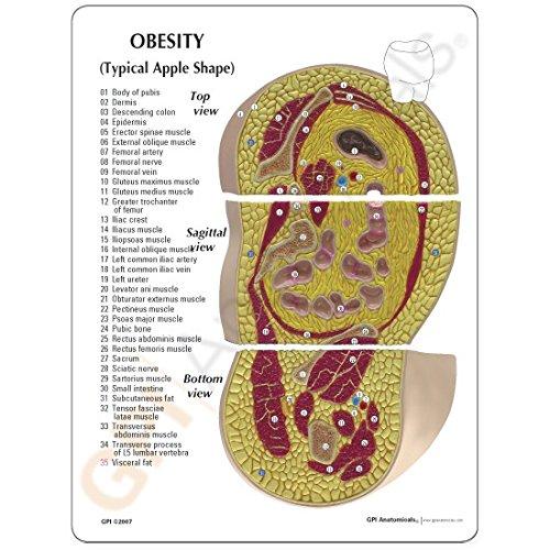 Bariatric Body Fat Profile Anatomical Model: Human Anatomical Models ...