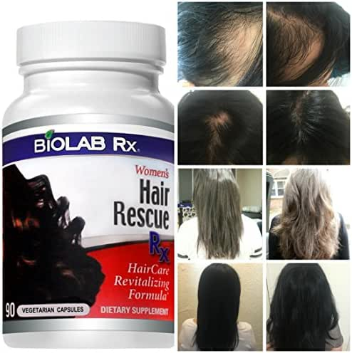 Hair Rescue Rx: Natural Hair Loss Vitamins for Women, Hair Growth Supplement, Stops Hair Loss, Stimulates Hair Growth, Promotes Thicker, Fuller and Faster Growing Hair.