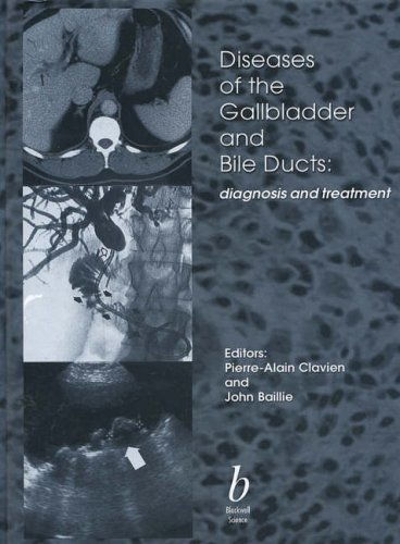 Diseases of the Gallbladder and Bile Ducts: Diagnosis and Treatment