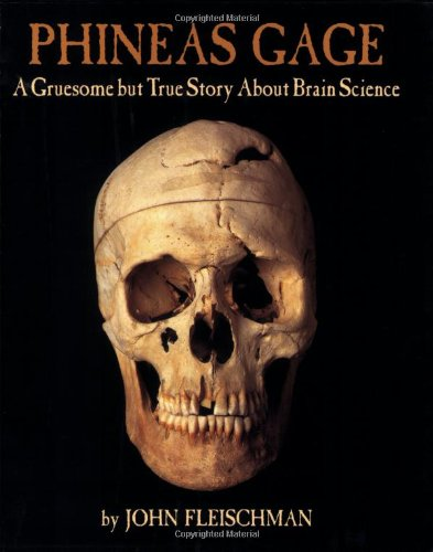 Phineas Gage Gruesome Story Science