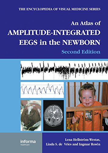 Download An Atlas of Amplitude-Integrated EEGs in the Newborn, Second Edition (Encyclopedia of Visual Medicine Series) Pdf