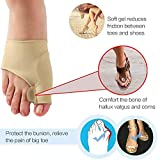 Clothful  2 Pair Healthy Leg Recommended Thumb Valgus Toe Separator Relief Corrector Pad