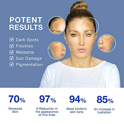 Dark Spot Corrector Remover for Face and Body, Fade Dark Spots,Brighten & Even Tone - Contains Effective Ingredient Arbutin and Niacinamide -40 ml