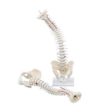 Wirbelsäule mit Bandscheibenvorfall, Becken, Anatomie Modell ...
