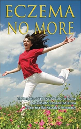 Eczema No More The Complete Guide To Natural Cures For Eczema And A