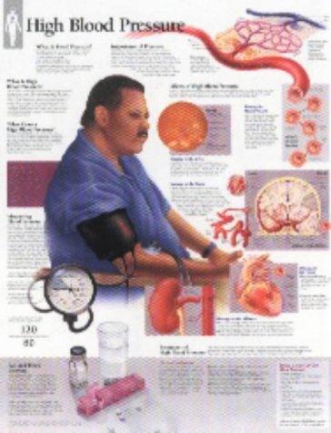 High Blood Pressure Chart  Laminated Wall Chart