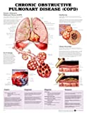 Chronic Obstructive Pulmonary Disease Anatomical Chart, Anatomical Chart Company, 1587795442