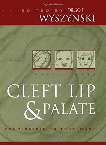 Cleft Lip Palate Treatment - 3