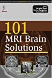 101 MRI Brain Solutions, Singh, Hariqbal and Angankar, Varsha, 9351525538