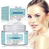 Best Cream For Melasmas - Dark Spot Corrector, Freckle cream, Melasma Cream, Natural Review