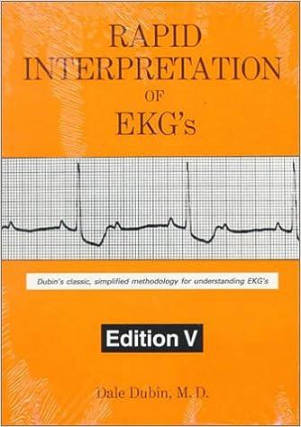 Rapid Interpretation of EKG's