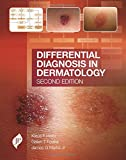img - for Differential Diagnosis in Dermatology book / textbook / text book