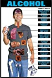 """Harmful Effects of Alcohol 24"""" X 36"""" Laminated Poster"""