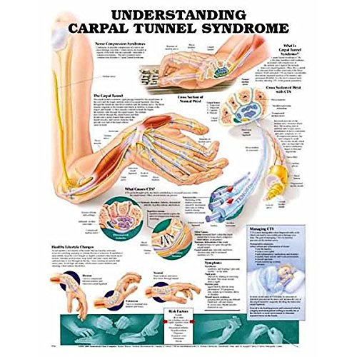 Understanding Carpal Tunnel Syndrome Anatomical ()