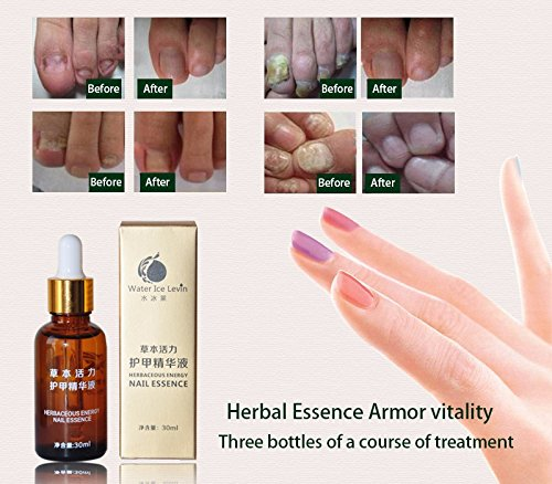 Skymore Nail Essence Herbaceous Energy Repair Nail Recovery by SKYMORE (Image #7)