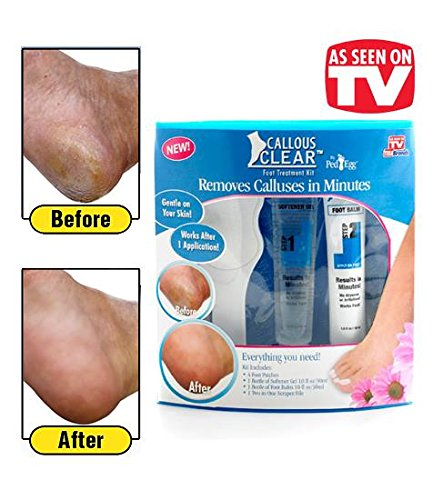 Callous Clear(TM) Foot Treatment Kit - Removes Calluses in Minutes